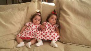 gêmeas transfusão feto fetal